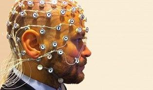 """Příznaky epilepsie: Od """"nepamatování"""" až po křeče"""