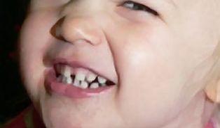 Dětské zuby: je-li v ústech zub, je třeba ho čistit