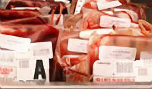 Krevní skupina ovlivní váš život. Jen jíst podle ní je nesmysl