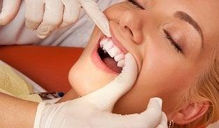 Vitalia.cz: K čemu vedou obnažené zubní krčky