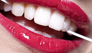 Zubní kámen, to je prevít…