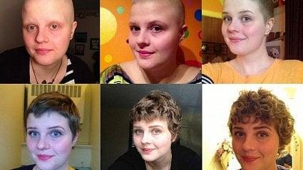Vitalia.cz: Chemoterapie: proč dělá zrovných vlasů kudrnaté