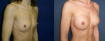Zvětšení prsou - augmentace; před/po