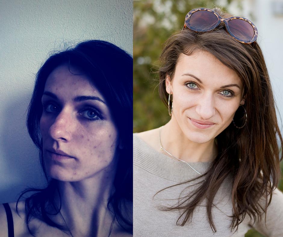 Dermatilománie – posedlost kůží, která nezná mezí