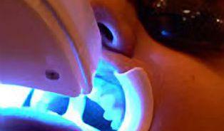 Bělení zubů není pro každého