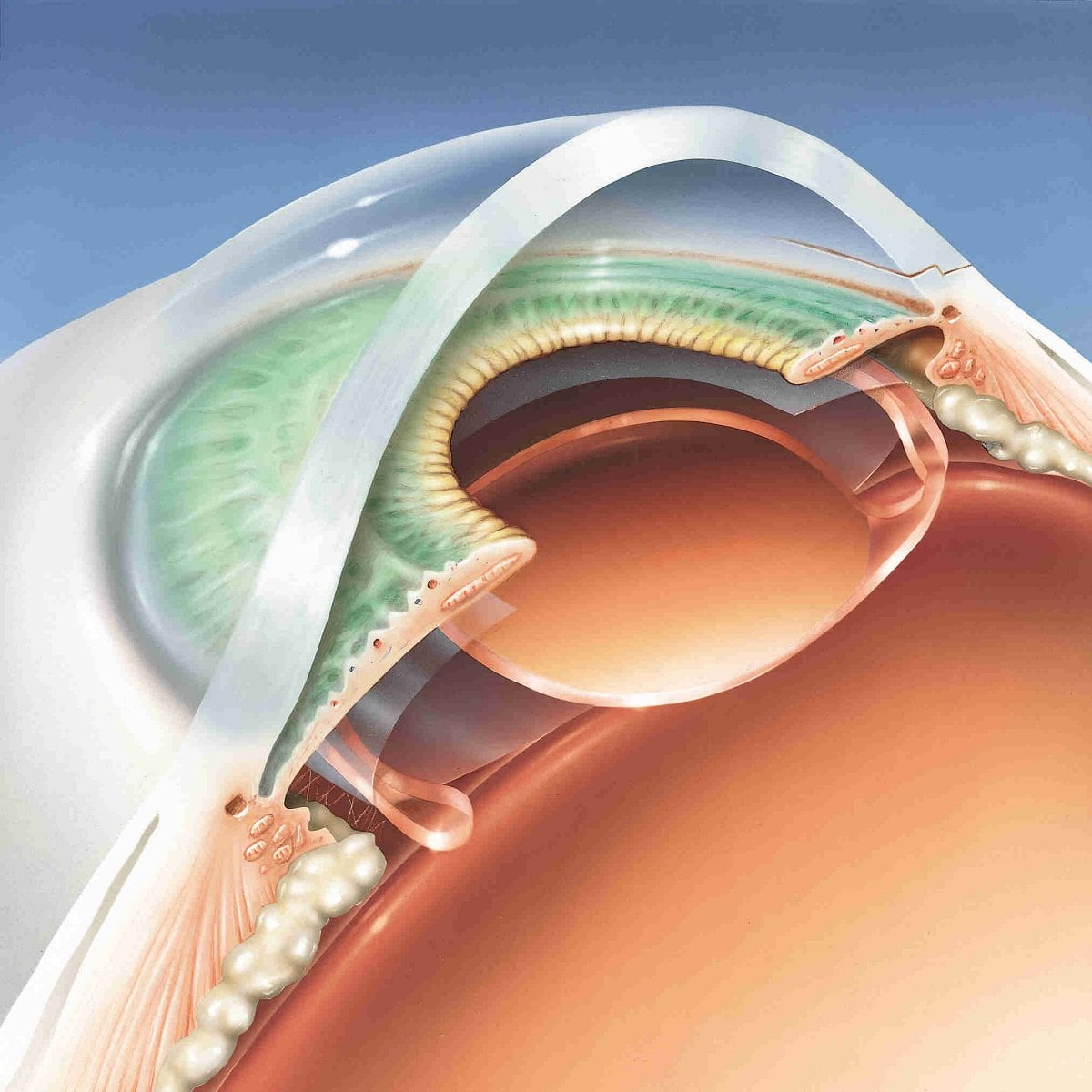 Operace šedého zákalu, nitrooční čočky