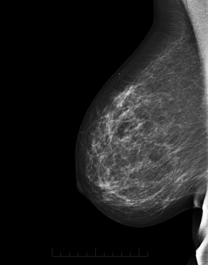 Mamografický snímek