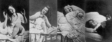 Historické snímky žen léčených s hysterií