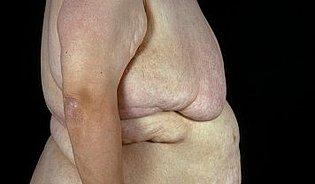 Obezita zabíjí ivČesku