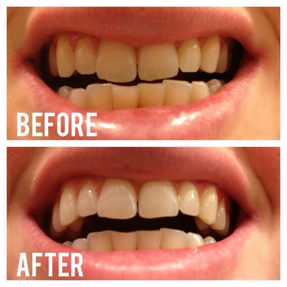 Bělení zubů černým uhlím