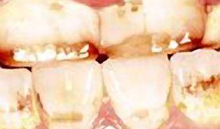 Fluoru jen přiměřeně, jeho nadbytek zuby poškodí