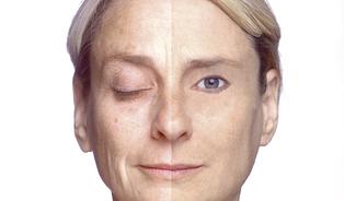 Zpomalování stárnutí vašich kožních buněk je kanadskýžertík
