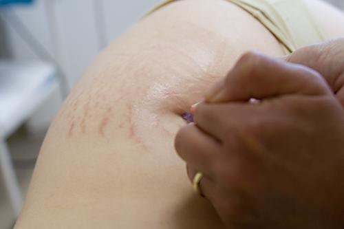 žena strií počas sexu