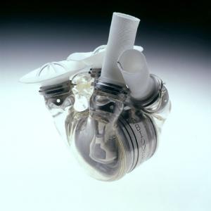 umělé srdce AbioCor