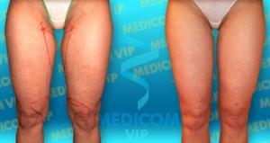 Medicina-a-zdravi-liposukce-03