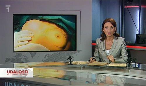 Události ČT - příspěvek o prsních implantátech